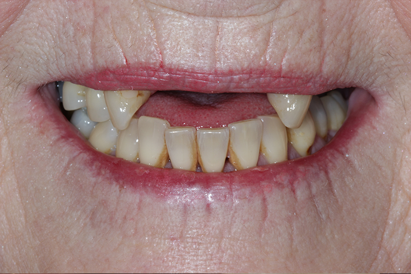 Dentures r dental clinic chrome dentures solutioingenieria Image collections